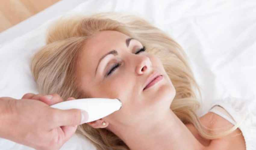 Cicatrici acne Laser: costi 2020 a seduta, durata, effetti