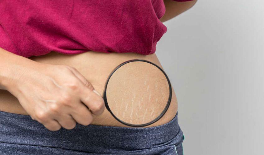 Come eliminare le smagliature bianche o rosse: rimedi e come curarle