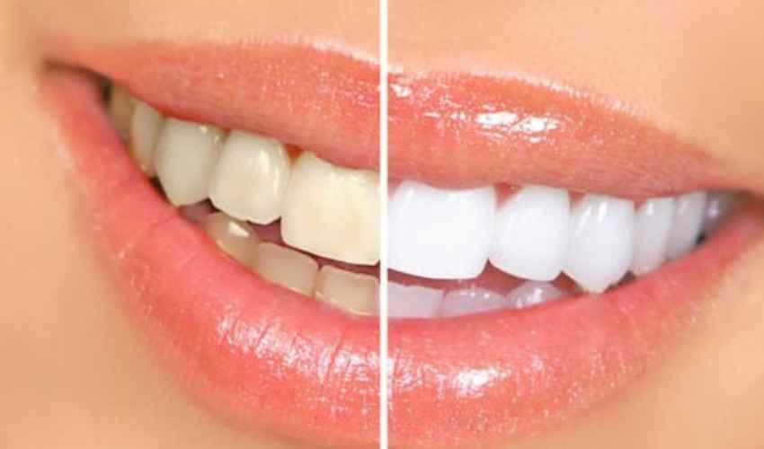 Sbiancamento denti: dentista prezzo 2020 seduta laser costo fai da te