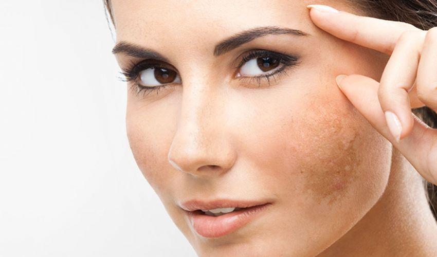Macchie del sole sulla pelle: come eliminarle, i rimedi per schiarirle