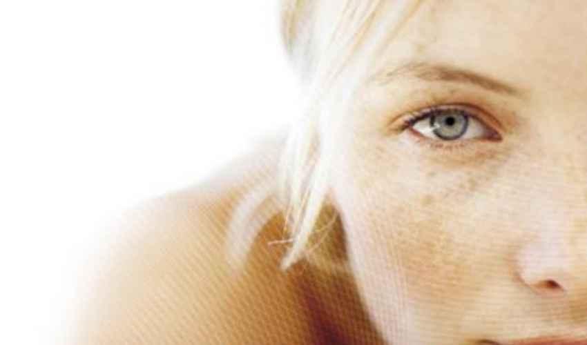 Macchie scure sulla pelle del viso: come eliminarle, cura e rimedi