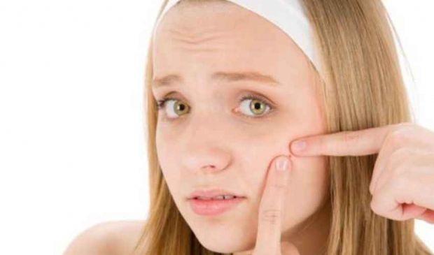 Rimedi contro i brufoli: come fare per eliminare acne bolle punti neri