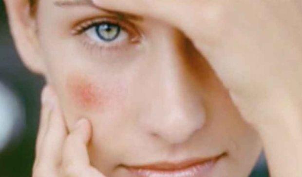 Couperose viso: rimedi migliori sintomi cause, come curarla