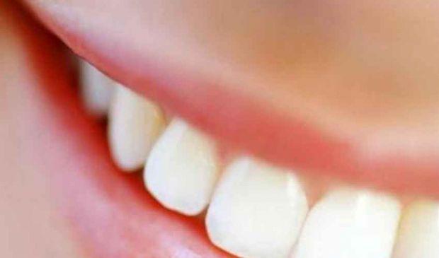 Faccette Dentali costo 2020: prezzi Roma e Croazia, controindicazioni