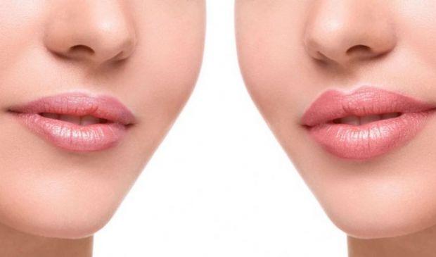 Filler labbra costi 2020: cos'è e come funziona, a cosa serve, durata