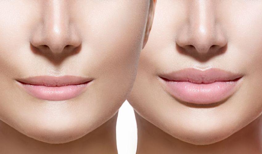 Costo Filler labbra 2020: prezzi punturine collagene acido ialuronico