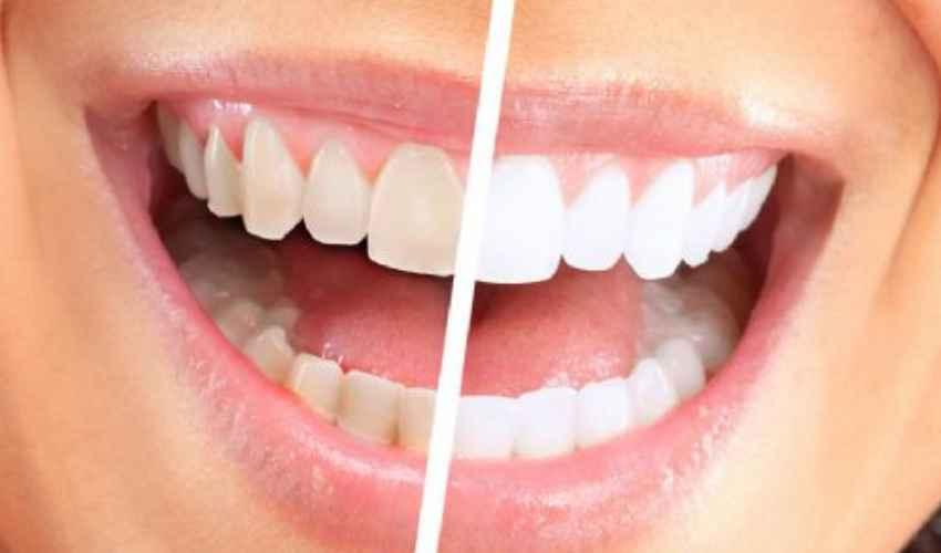 Faccette dentali costi 2021: cosa sono, durata e controindicazioni