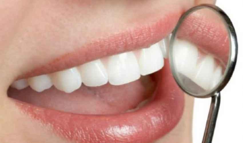 Sbiancamento denti 2021: quanto costa kit, dal dentista e fai da te