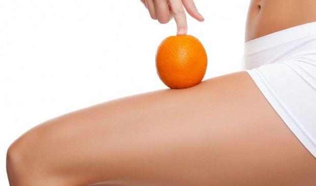Cellulite: cos'è, cause e rimedi buccia d'arancia gambe pancia glutei