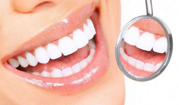 Sbiancamento denti 2021: costo, rimedi naturali e led dal dentista